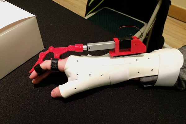 AccuGrip is a motorized gripping assistant for patients who cannot extend or flex their fingers.